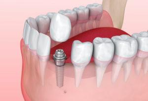 dental crowns and bridges for teeth