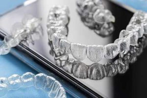 tray of clear aligners