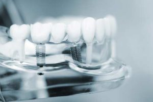 model of clear dental implants