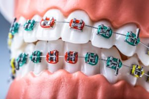 orthodontic services baytown texas